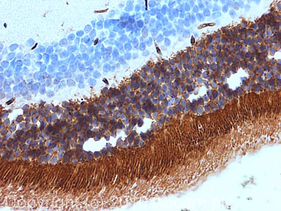 Immunohistochemistry (Formalin/PFA-fixed paraffin-embedded sections) - PHOS antibody (ab77523)