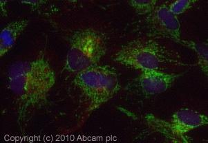 Immunocytochemistry/ Immunofluorescence - TOMM20 antibody (ab78547)
