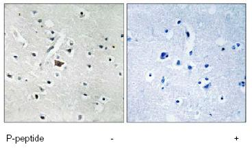 Immunohistochemistry (Formalin/PFA-fixed paraffin-embedded sections) - Phospholipase D2 (phospho Y169) antibody (ab78907)