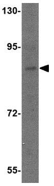Western blot - Dact2 antibody (ab79042)