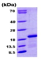 SDS-PAGE - CPLX1 protein (His tag) (ab79148)