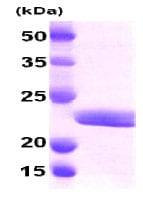 SDS-PAGE - Myosin Light Chain 2 protein (His tag) (ab79185)