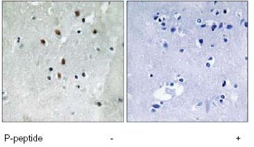 Immunohistochemistry (Formalin/PFA-fixed paraffin-embedded sections) - Serum Response Factor SRF (phospho S77) antibody (ab79295)