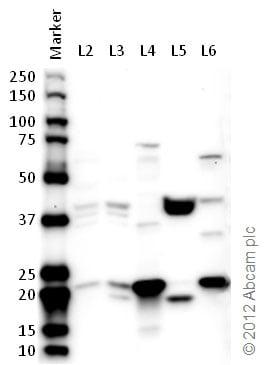 Western blot - Anti-RPL11 antibody (ab79352)