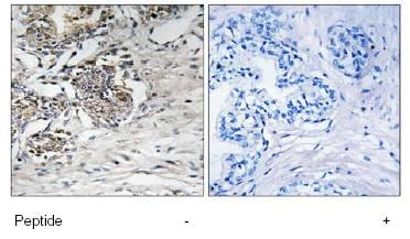Immunohistochemistry (Formalin/PFA-fixed paraffin-embedded sections) - Claudin 7 antibody (ab79481)