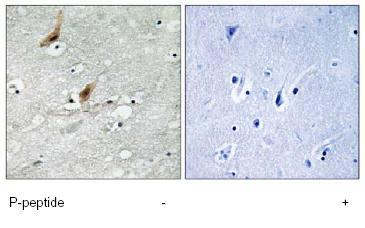 Immunohistochemistry (Formalin/PFA-fixed paraffin-embedded sections) - MSK2 / RSK-B (phospho T568) antibody (ab79502)