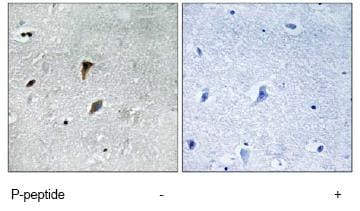 Immunohistochemistry (Formalin/PFA-fixed paraffin-embedded sections) - MEK3 (phospho T222) antibody (ab79586)
