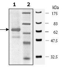 SDS-PAGE - ACK1 protein (Active) (ab79647)