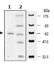 SDS-PAGE - PARP11 protein (Active) (ab79742)