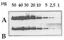 Western blot - Chemiluminescent Reagent (ab79907)