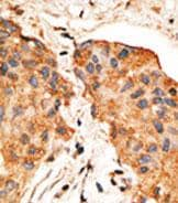 Immunohistochemistry (Formalin/PFA-fixed paraffin-embedded sections) - NRG1 antibody (ab80237)