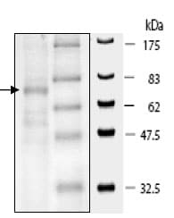 SDS-PAGE - HDAC10 protein (Active) (ab80283)