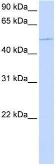 Western blot - KIF12 antibody (ab80448)