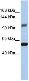Western blot - ZNF31 antibody (ab80506)