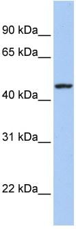 Western blot - ROM1 antibody (ab80507)