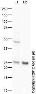 Western blot - Anti-FAM58A antibody (ab81062)