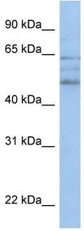 Western blot - ZMYND17 antibody (ab81242)