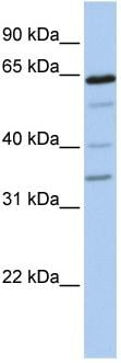 Western blot - GALNTL1 antibody (ab81245)