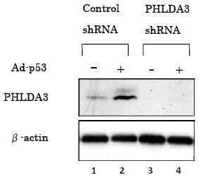 Western blot - PHLDA3 antibody [4B6] (ab81464)