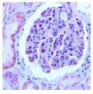 Immunohistochemistry (Formalin/PFA-fixed paraffin-embedded sections) - Nephrin antibody, prediluted (ab82113)