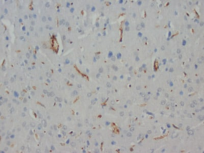 Immunohistochemistry (Formalin/PFA-fixed paraffin-embedded sections) - Anti-Hypophosphorylated Neurofilament H antibody [N52] (ab82259)