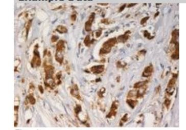 Immunohistochemistry (Formalin/PFA-fixed paraffin-embedded sections) - AGR3 antibody [AGR3.1] (ab82400)