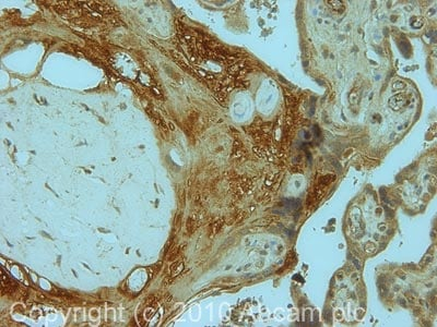 Immunohistochemistry (Formalin/PFA-fixed paraffin-embedded sections) - Collagen I antibody (ab82504)