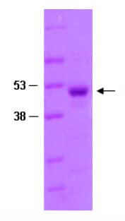 SDS-PAGE - PGP9.5 protein (Tagged) (ab82628)