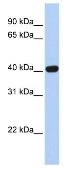 Western blot - Coxsackie Adenovirus Receptor antibody (ab82726)