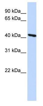 Western blot - Tropomodulin 3 antibody (ab82911)