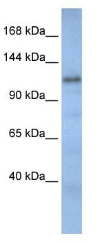 Western blot - TIP120B antibody (ab82914)