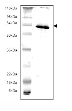 SDS-PAGE - Monoamine Oxidase B protein (His tag) (ab82944)