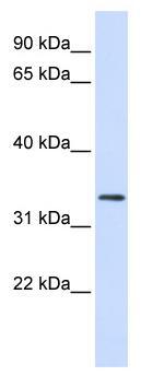 Western blot - FBXO25 antibody (ab82971)