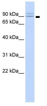 Western blot - Secretory Amyloid Precursor Protein  antibody (ab82972)