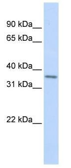 Western blot - HOX11 antibody (ab83059)