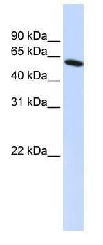 Western blot - PDLIM5 antibody (ab83060)