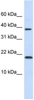 Western blot - CHRAC1 antibody (ab83079)