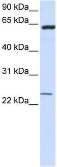 Western blot - TMEM138 antibody (ab83083)