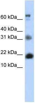Western blot - BUD31 antibody (ab83308)