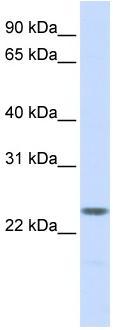 Western blot - NPM2 antibody (ab83310)