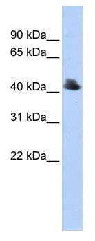 Western blot - FBXO4 antibody (ab83318)