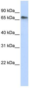 Western blot - AP4 antibody (ab83414)