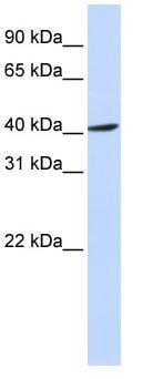 Western blot - FBXO28 antibody (ab83421)