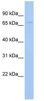 Western blot - UGT3A2 antibody (ab83425)