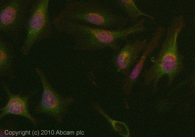 Immunocytochemistry/ Immunofluorescence - ATF6 antibody (ab83504)