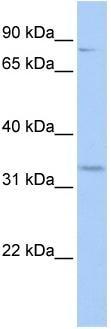 Western blot - RFPL4B antibody (ab83526)