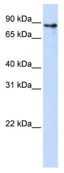 Western blot - KLHL1 antibody (ab83539)