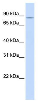 Western blot - SLC26A3 antibody (ab83545)