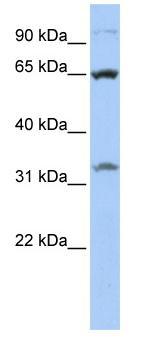 Western blot - SLC24A6 antibody (ab83551)