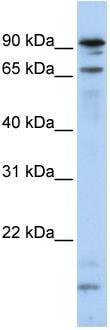 Western blot - MSL2L1 antibody (ab83911)